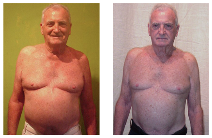 william-before-after